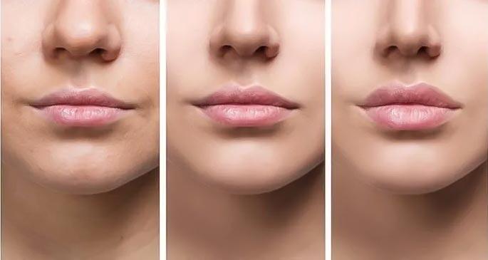 img-blog-lip-fillers
